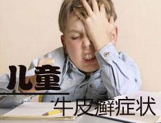 儿童牛皮癣的症状是什么