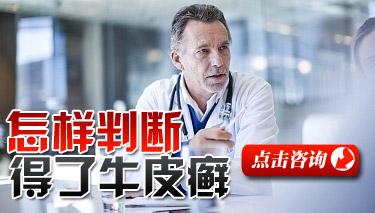 医院如何对于牛皮癣患者检查?