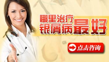 哪些是牛皮癣的最好治疗方法?