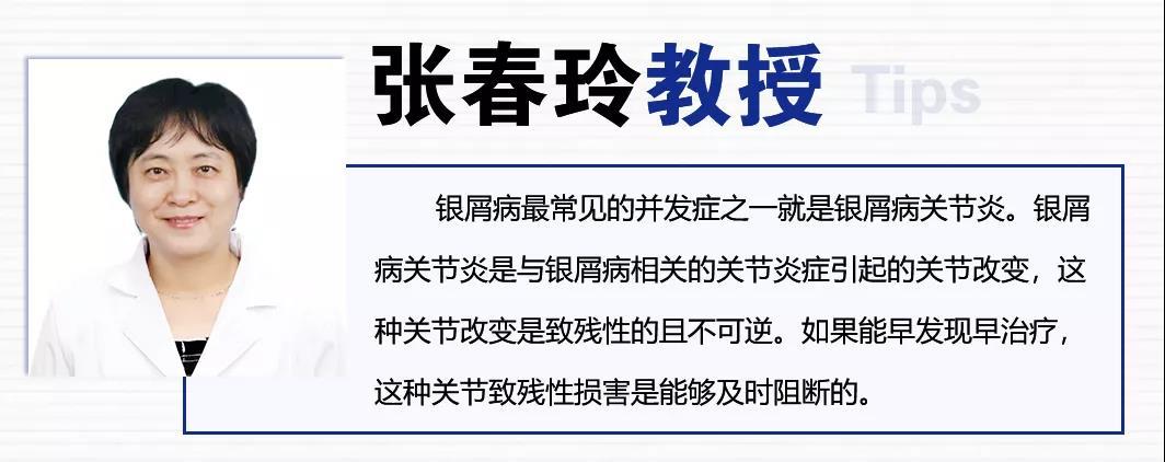 速转!国庆期间,北京三甲名医张春玲教授会诊+检查、治疗统统减免,点击查看预约!